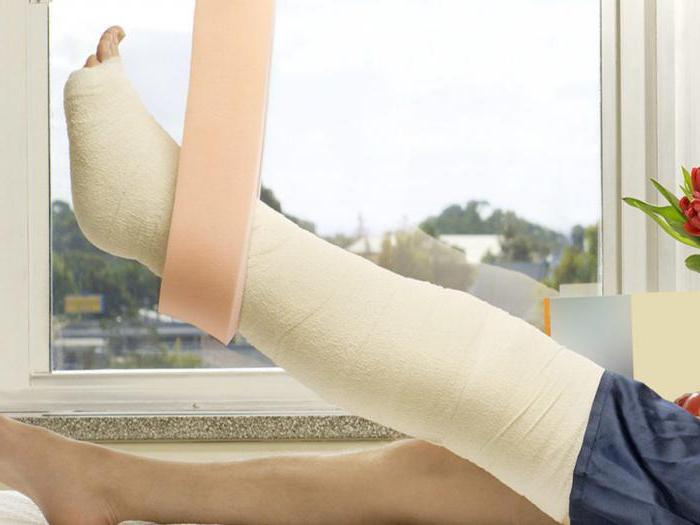 Cara mengobati nyeri pada lutut