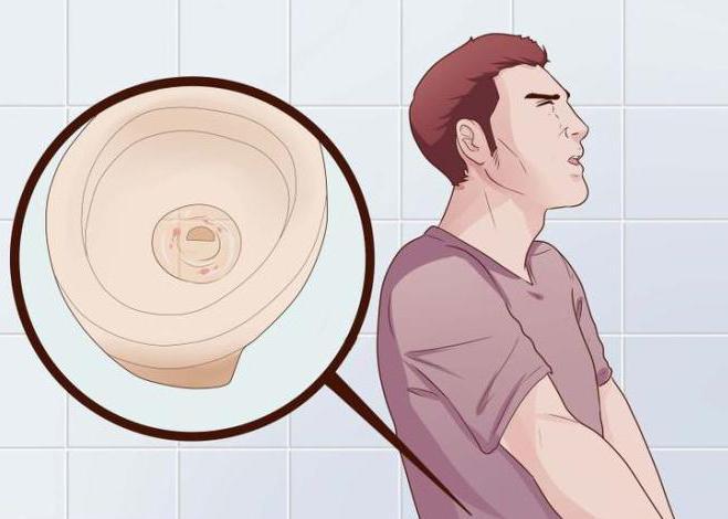 mert a prostatitis vizeléssel Prosztata fájdalom az ülésen
