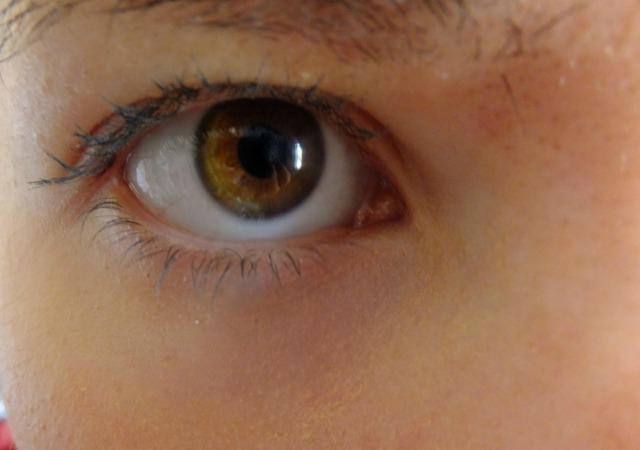 اصفرار تحت العين أسباب وخصائص العلاج