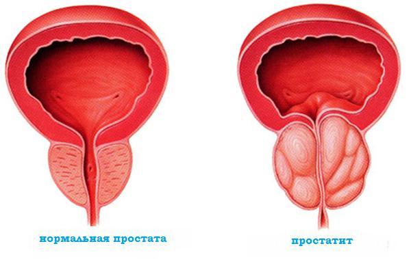 ASD gyógyult a prosztatagyulladásról